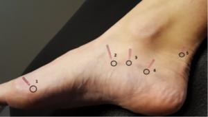 Akupunktur på fødder